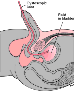 Male Cystoscopy