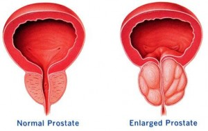Prostate Enlargement