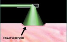 Green Light Laser Surgery For Prostate Enlargement