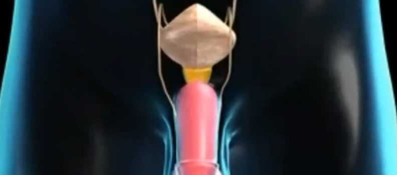 How the Vasectomy Procedure is Performed