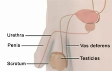 Vasectomy Procedure Animation