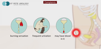 Recurring Urinary Tract Infections | St Pete Urology
