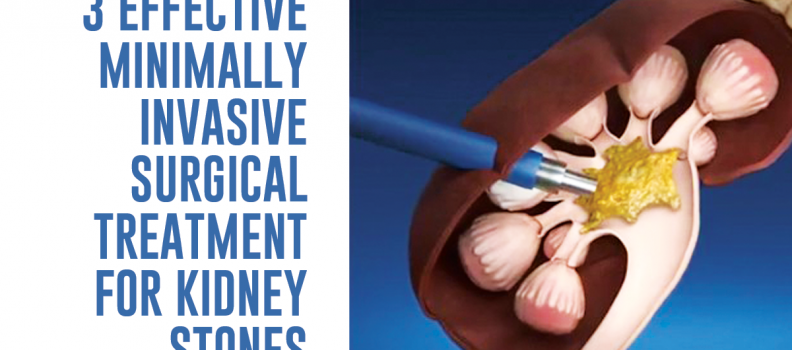 3 Effective Minimally Invasive Surgical Treatment For Kidney Stones