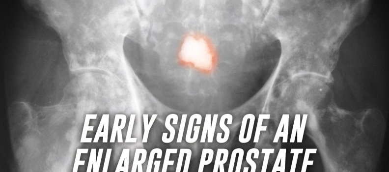 Early Signs of an Enlarged Prostate