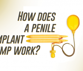 How does a penile implant pump work?