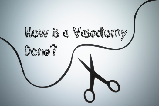 How is a Vasectomy Done?