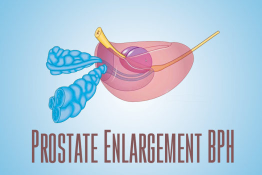 Prostate Enlargement BPH