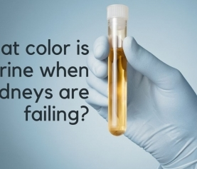 What color is urine when kidneys are failing?