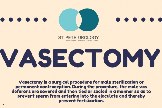 Vasectomy Infographics